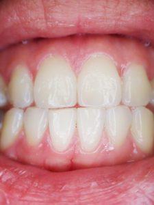 teeth-887338_640
